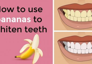 How to use bananas to whiten teeth