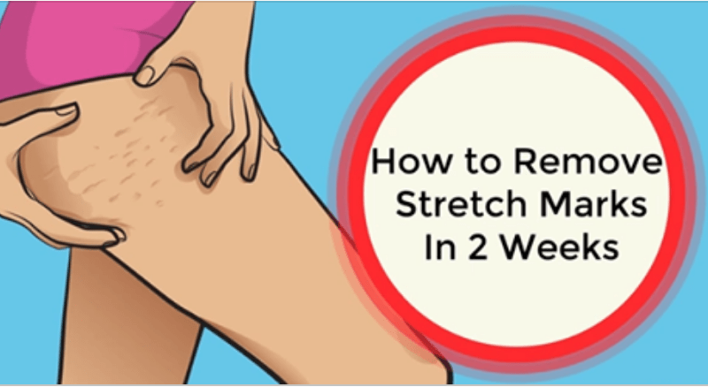 HOW REMOVE STRETCH MARKS FAST IN 2 WEEKS